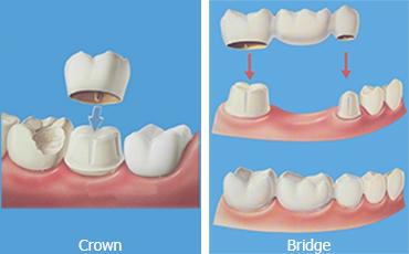 Crowns_Bridges