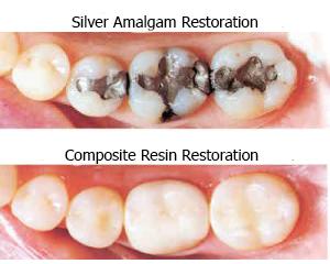 silver_resin_fill